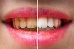 Tand- behandling för kvinnatänder före och efter royaltyfria bilder
