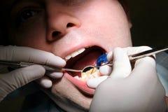 Tand controle omhoog De tandcontrole met tandhulpmiddelen sondeert, weerspiegelt en zuigingsbuis in mond De tandarts onderzoekt v Royalty-vrije Stock Foto
