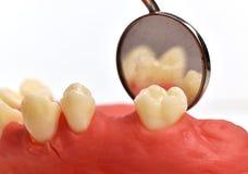 Tand för tand- implantat Arkivfoto
