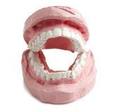 tand- fördämning Fotografering för Bildbyråer