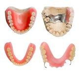 tand- fullt prosthesisformat för samling royaltyfri fotografi