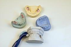 tand- gjuta arkivbild