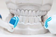 tand- gjuta arkivfoto