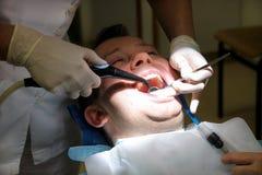Tand- hjälpmedel för att skölja tänder Tänder som gör ren, tand- hygien Tandläkaren är att skölja av tålmodiga tänder med lokalvå Fotografering för Bildbyråer