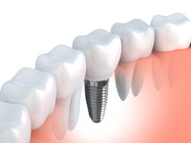 Tand implant Royalty-vrije Stock Foto's
