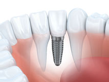 Tand implant Stock Afbeelding