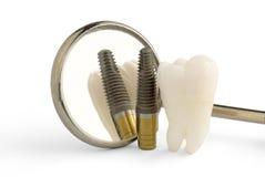 tand- implantat Royaltyfri Fotografi