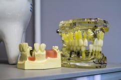 Tand- implantat och tänder i skallen Arkivbild