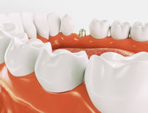 Tand- implantat - serie 3 av 3 - tolkning 3d Arkivbild
