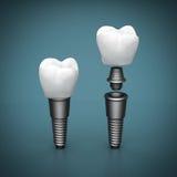tand- implantatmedicinstomatology vektor illustrationer