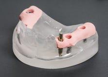 tand- implantatmedicinstomatology arkivbild