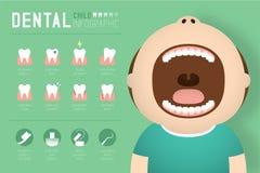 Tand- infographic av pojkebarnillustrationen stock illustrationer