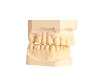 tand- intryck 4 arkivbild