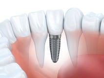 tand- isolerad siktswhite för element implantat Fotografering för Bildbyråer