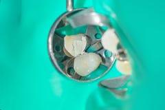 Tand- karies Påfyllning med tand- sammansatt photopolymermateri Royaltyfri Fotografi