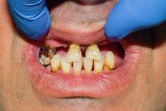 Tand- karies Påfyllning med tand- sammansatt photopolymermateri Royaltyfri Bild