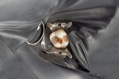 Tand- karies Påfyllning med tand- sammansatt photopolymermateri arkivbild