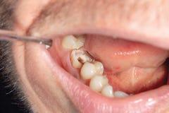 Tand- karies Påfyllning med tand- sammansatt photopolymermateri royaltyfri foto