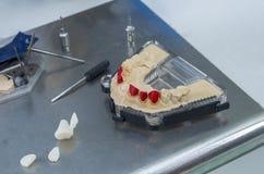Tand- krona eller bro med tandlitiumdisilicate arkivbild