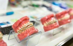Tand- medicinutrustning som är orthodontic fotografering för bildbyråer