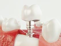 Tand menselijke implant - het 3d teruggeven Royalty-vrije Stock Foto's