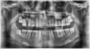 Tand- panaromic röntgenstrålefilm royaltyfri bild