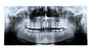 Tand- panorama- röntgenstrålefilm Fotografering för Bildbyråer