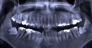 Tand- röntgenstråle Arkivfoton