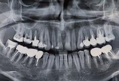 Tand- röntgenstråle royaltyfri bild