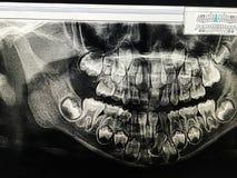 Tand- röntgenstråle av barnet 6 år, alla mjölktänder i sikt arkivfoto