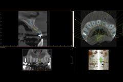 Tand- röntgenstråle 3D av tandimplantatet Arkivbild