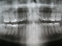 Tand Röntgenstraal Royalty-vrije Stock Afbeeldingen
