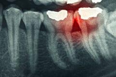 Tand röntgenstraal stock foto