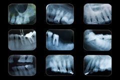 Tand x-ray film royalty-vrije stock foto
