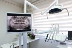 Tand x-ray lengte in tandkliniek stock foto