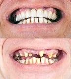 Tand- rehabilitering fotografering för bildbyråer