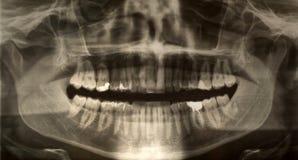 tand- stråle x Arkivbild