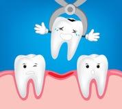 Tand tandextractie, verwijdering van tand Stock Afbeelding
