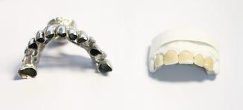 Tand- tandläkareobjekt Royaltyfria Bilder