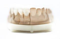 Tand- tandläkareobjekt Arkivfoto