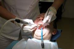 Tand- tandpolering Tänder som gör ren, tand- hygien Tandläkaren är polering av tålmodiga tänder med den mjuka tand- borsten Arkivbilder