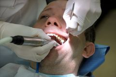 Tand- tandpolering Tänder som gör ren, tand- hygien Tandläkaren är polering av tålmodiga tänder med den mjuka tand- borsten Royaltyfria Bilder