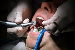 Tand- tandpolering Tänder som gör ren, tand- hygien Tandläkaren är polering av tålmodiga tänder med den mjuka tand- borsten Royaltyfria Foton