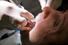 Tand- tandpolering Tänder som gör ren, tand- hygien Tandläkaren är polering av tålmodiga tänder med den mjuka tand- borsten Arkivbild