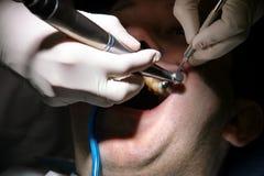 Tand- tandpolering Tänder som gör ren, tand- hygien Tandläkaren är polering av tålmodiga tänder med den mjuka tand- borsten Arkivfoton