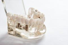 Tand- tandtandl?kekonststudent som l?r den undervisande modellen som visar t?nder royaltyfria bilder