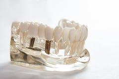 Tand- tandtandl?kekonststudent som l?r den undervisande modellen som visar t?nder royaltyfri fotografi