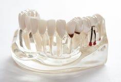 Tand- tandtandl?kekonststudent som l?r den undervisande modellen som visar t?nder arkivbilder