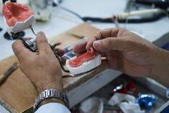 Tand- tekniker som använder en kniv med keramiska tand- implantat arkivfoton