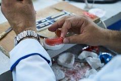 Tand- tekniker som använder en kniv med keramiska tand- implantat royaltyfri foto